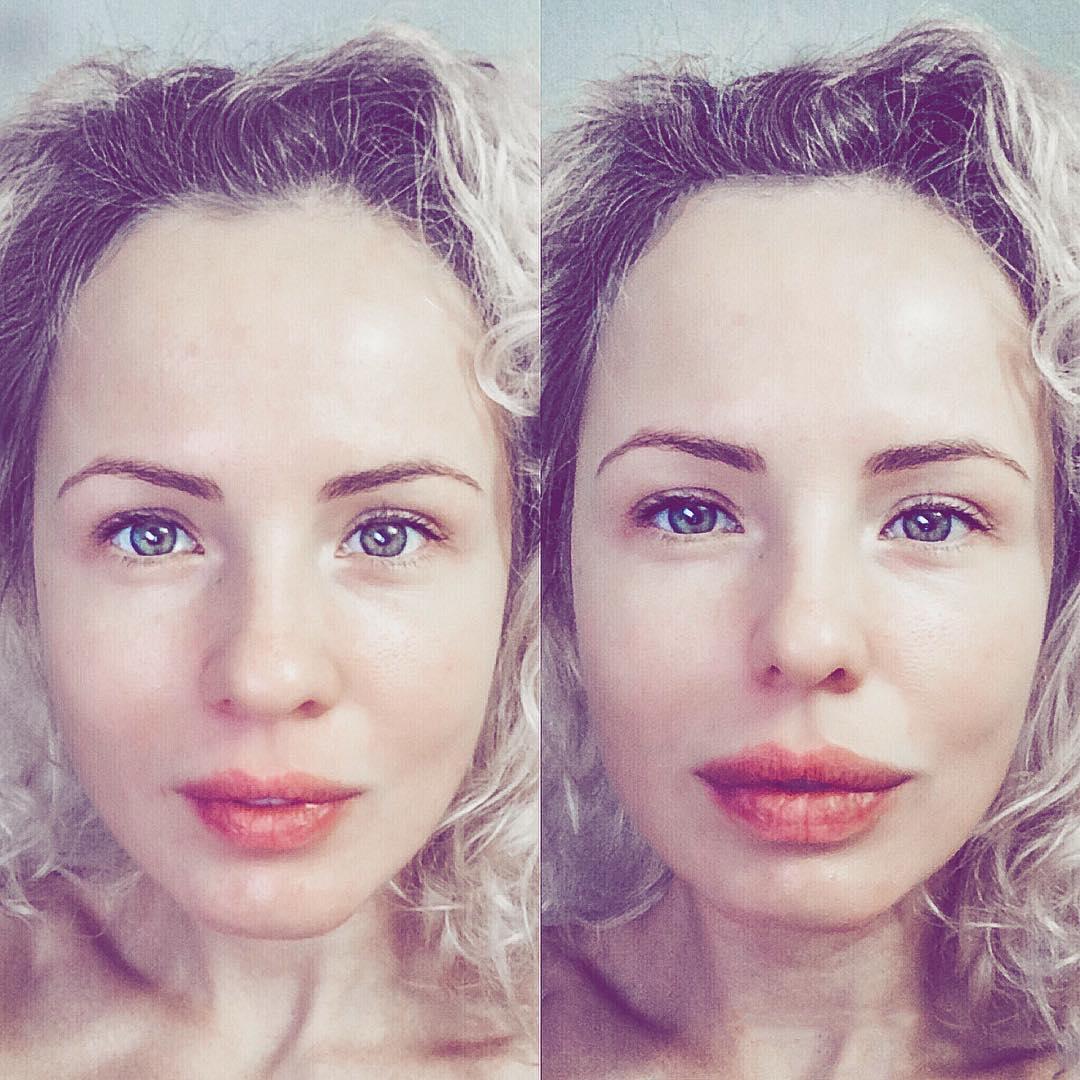 снимке актриса саша харитонова фото до и после пластики долго